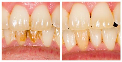 teeth_ba